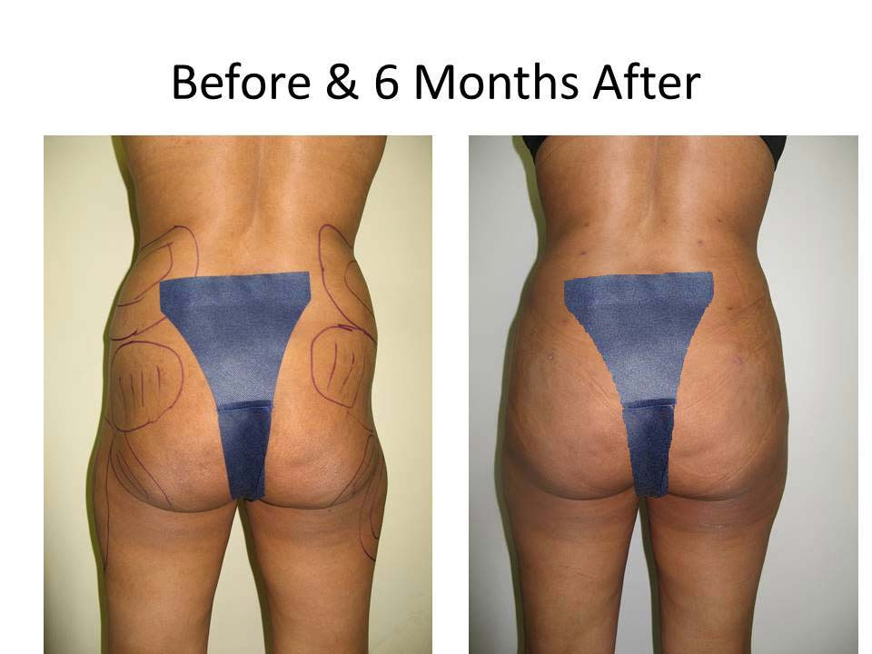 Brazilian Buttlift 6 month result