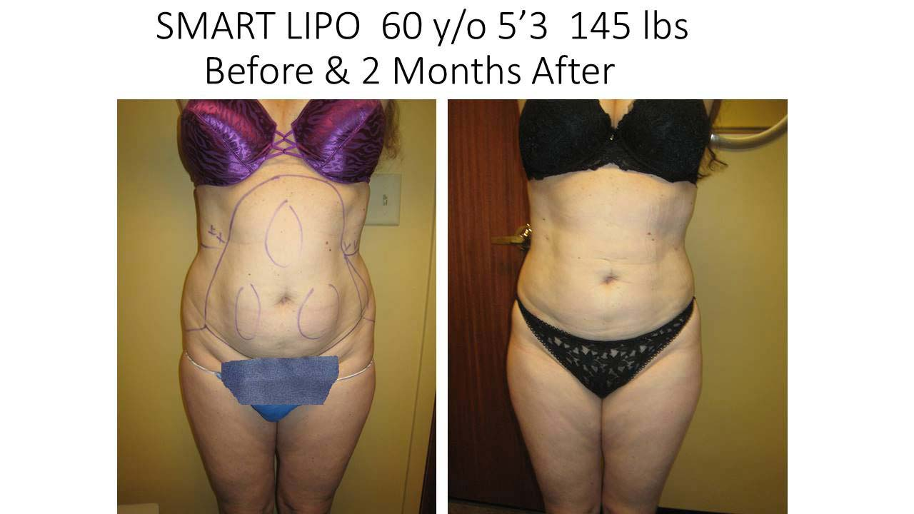 Smartlipo 60 Y/O after 2 months