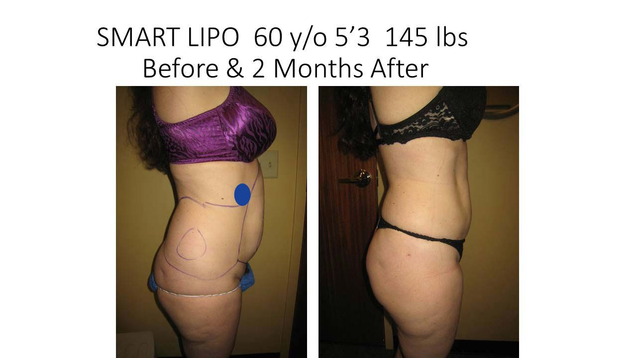 Smartlipo of 60 Y/O 2 months