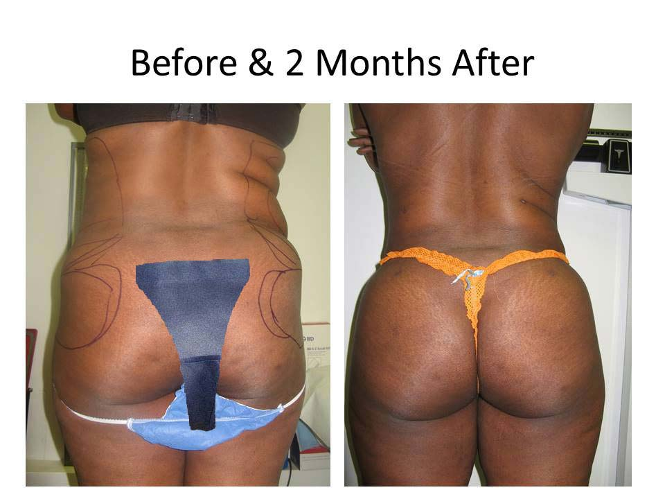 Brazilian Buttlift 2 Months