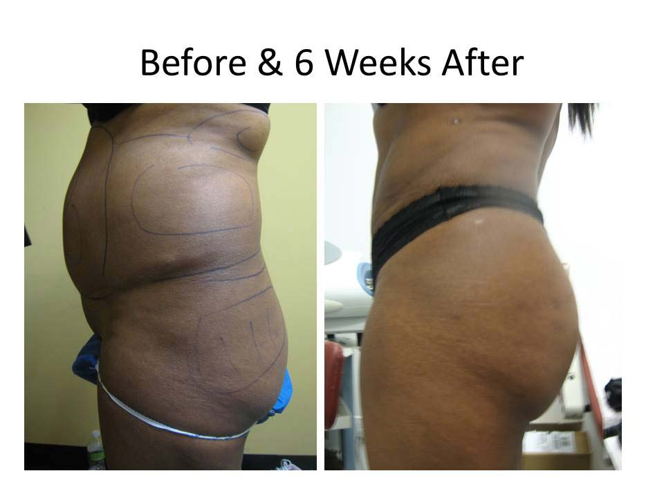 Brazilian Buttlift after 6 Weeks result