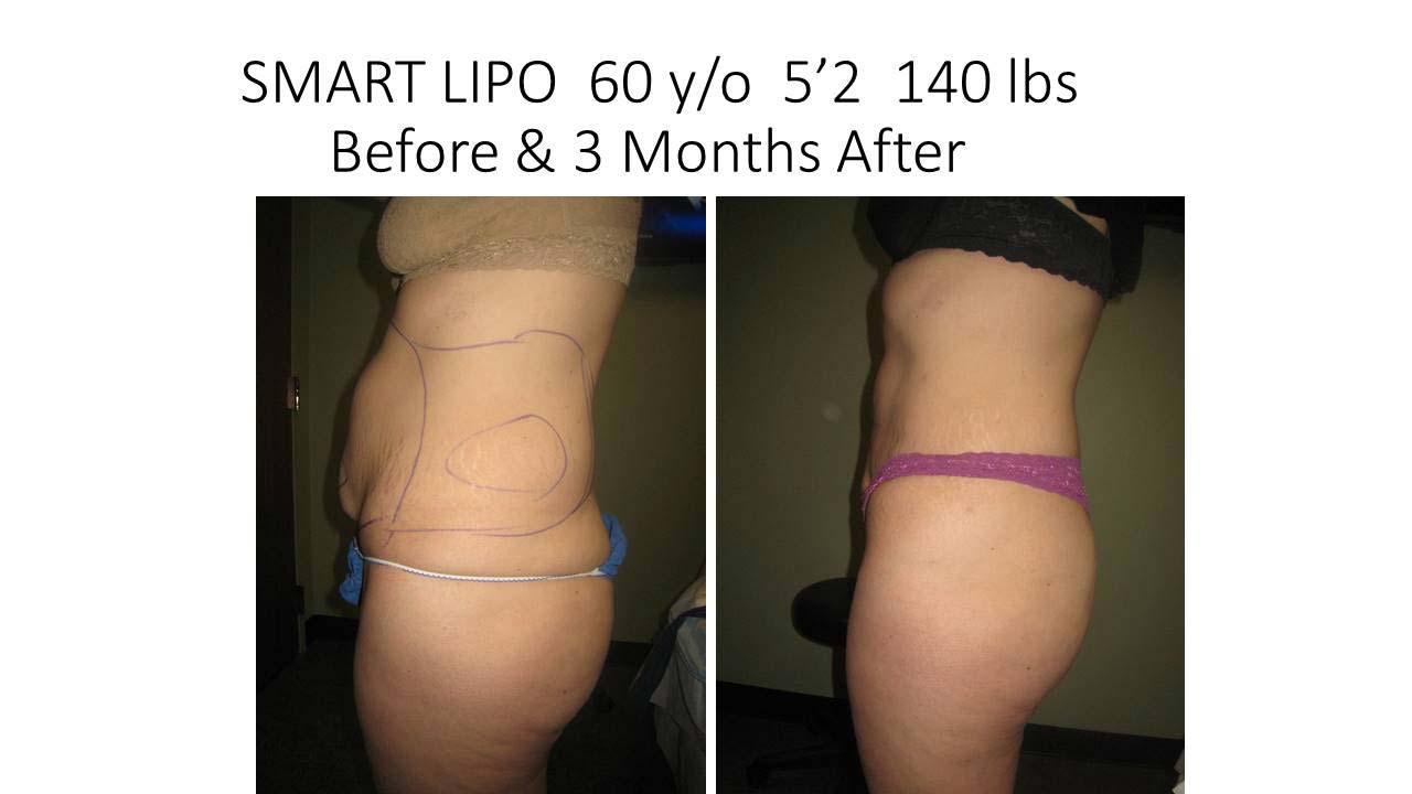 Smartlipo 60 Y/O 3 month result