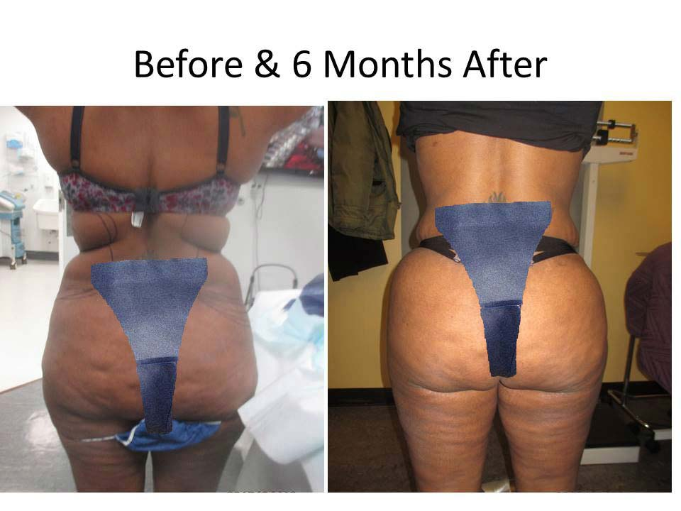 Brazilian Buttlift before and after Photo result