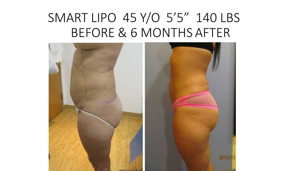 Smartlipo 45 Y/O 6 month results