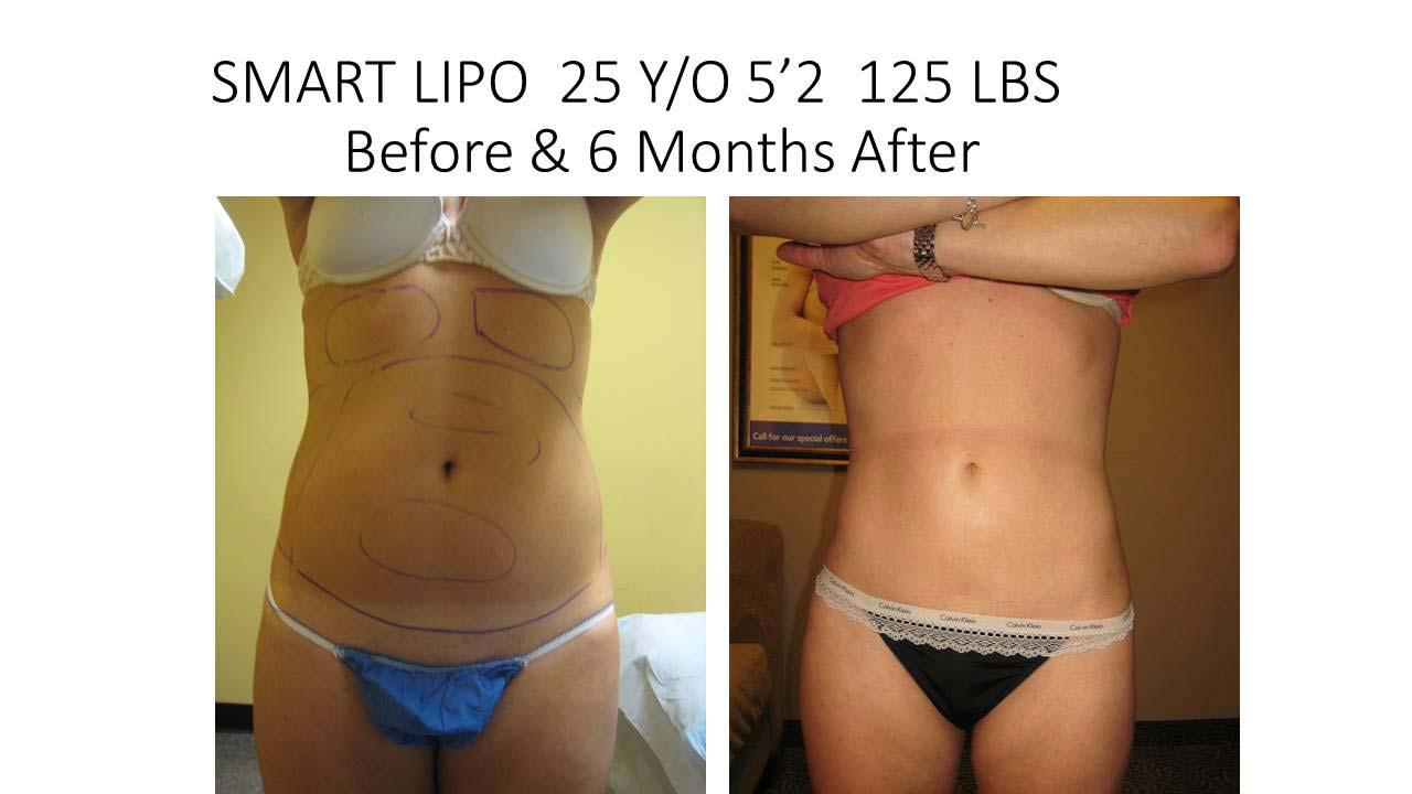 Smartlipo 25 Y/O 6 month result