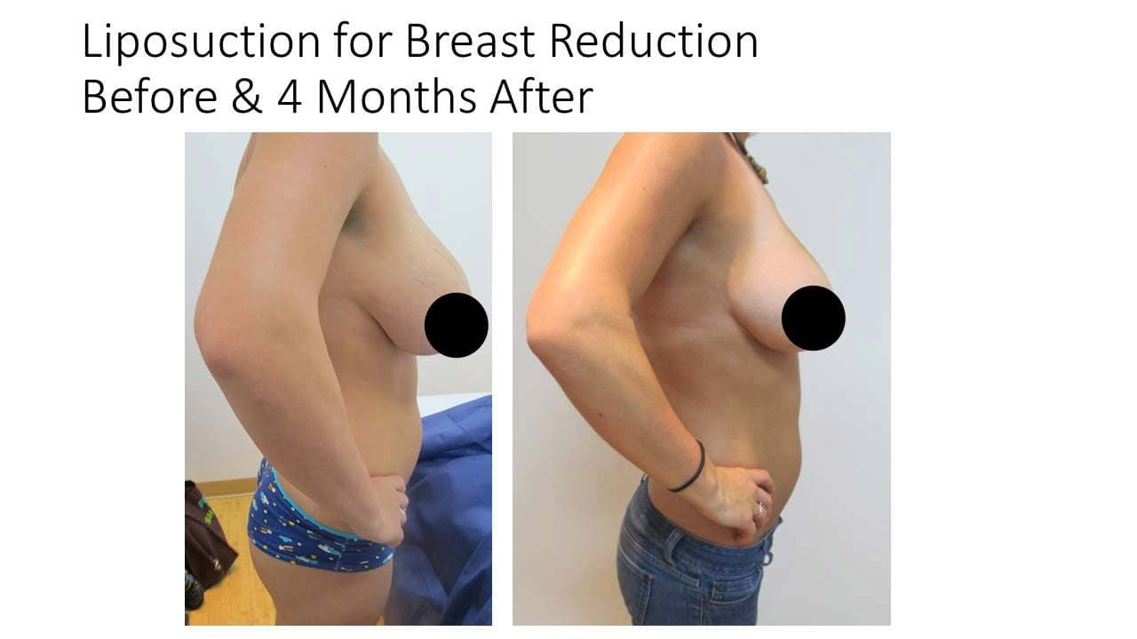 Liposuction for Breast Reduction Results