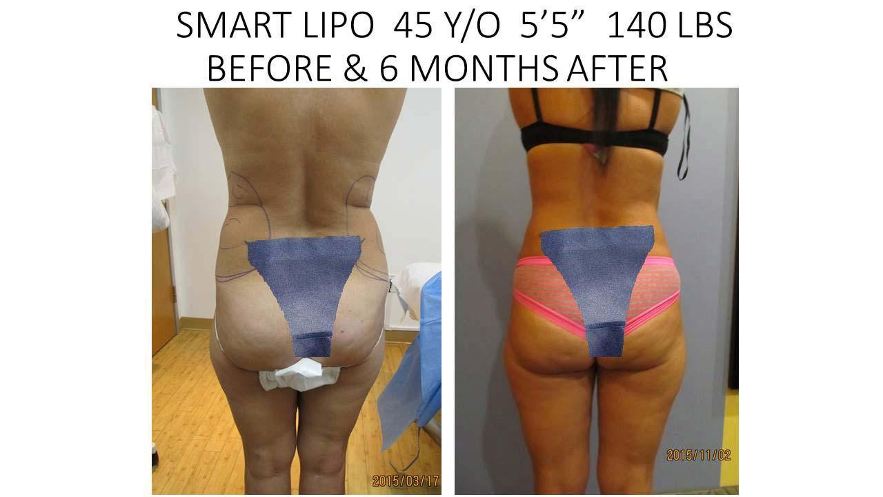 Smartlipo 45 Y/O 6 months