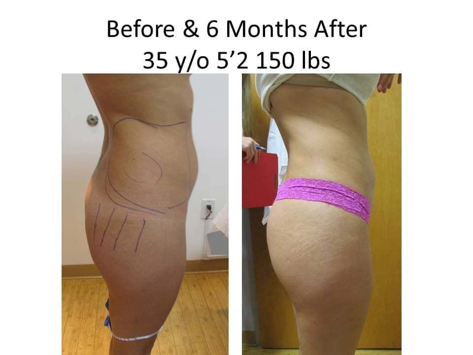 Liposuction Before and after 6 months of 35 y/o