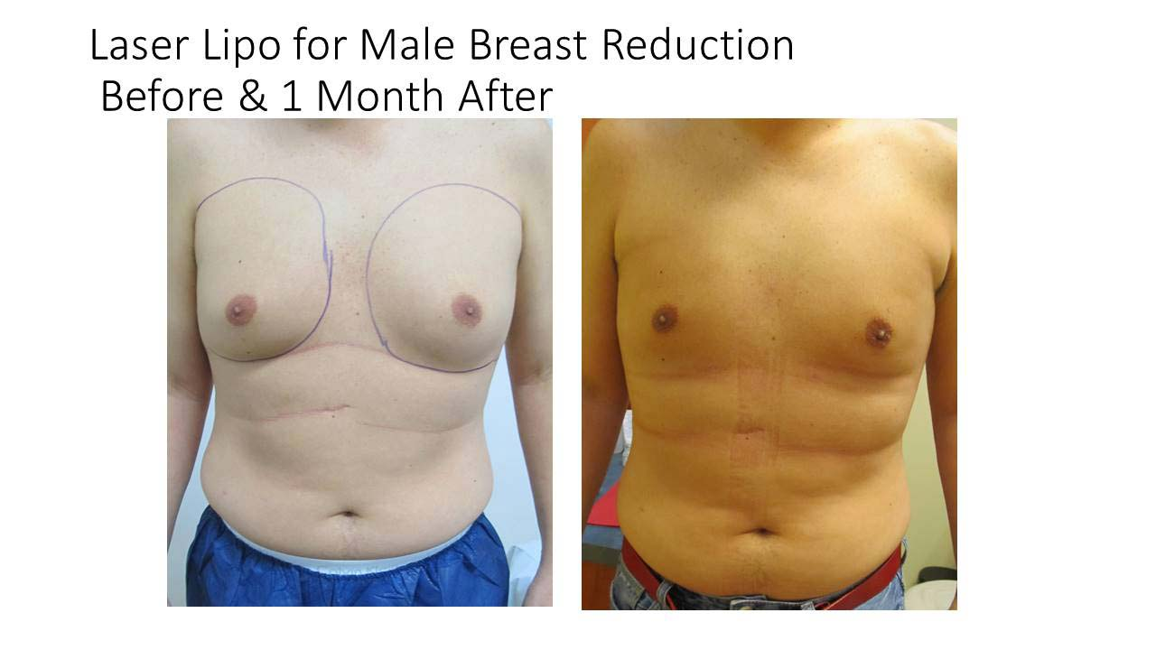 Laser Lipo For Male