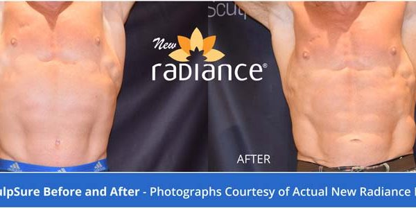 sculpsure for men1