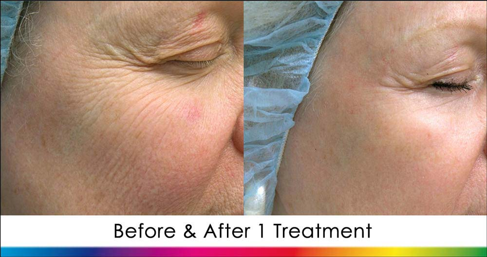 Ablative Laser Skin Rejuvenation New Radiance Cosmetic Center Wellington