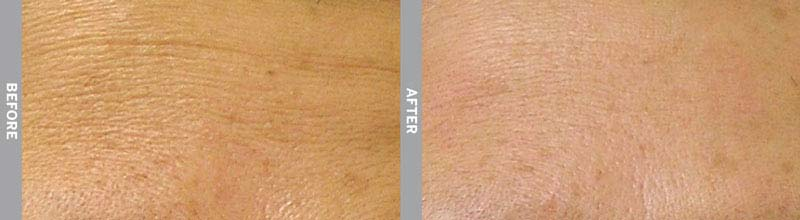 Hydra Facial Before & After Wrinkles Wellington