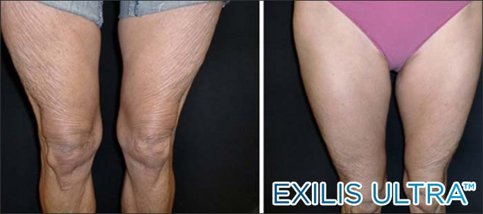 Crepey legs before and after New Radiance Wellington