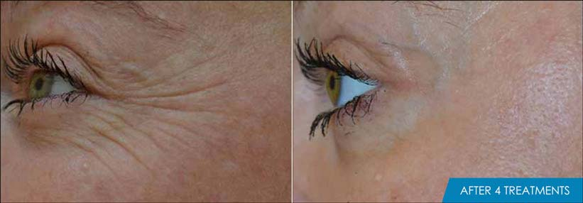 Exilis Ultra Eyes Before & After New Radiance Wellington