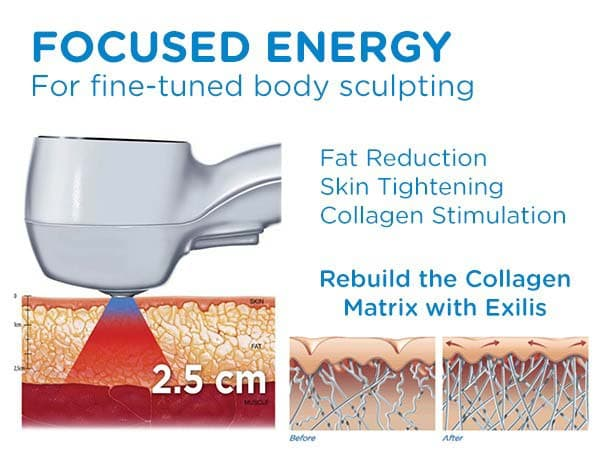 Exilis Skin tightening with Ultra Sculpting New Radiance Cosmetic Center