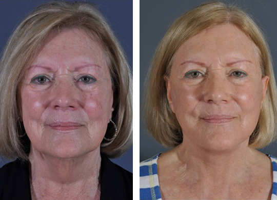 Dr. Dedo Face Lift Before and After 4