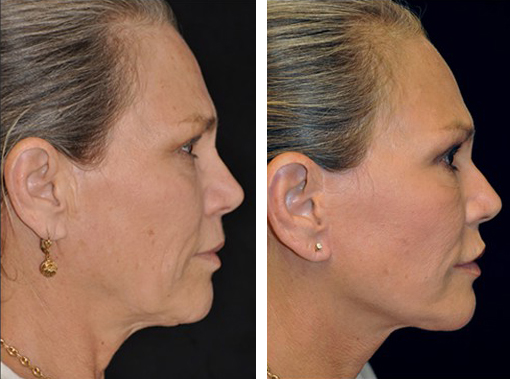 Dr. Dedo Face Lift Before and After 5