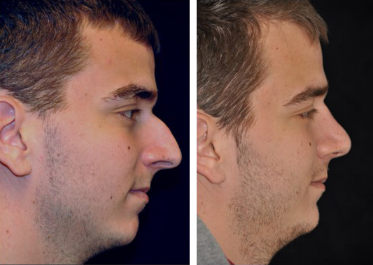 Dr. Dedo Rhinoplasty Before and After 1