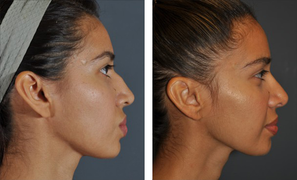 Dr. Dedo Rhinoplasty Before and After 2
