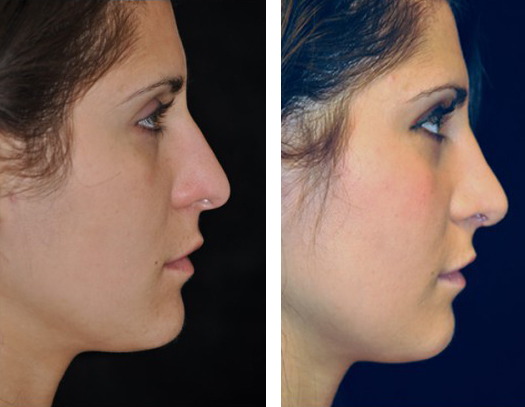 Dr. Dedo Rhinoplasty Before and After 3