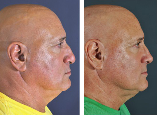 Dr. Dedo Rhinoplasty Before and After 4