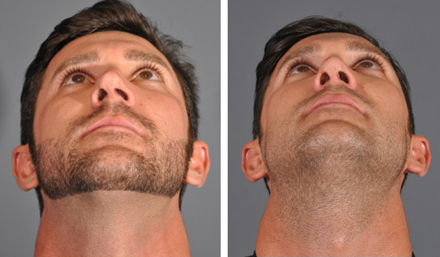 Dr. Dedo Rhinoplasty Before and After 5