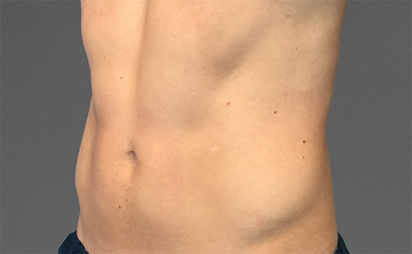 cooltone wellington male abdomen 1 after