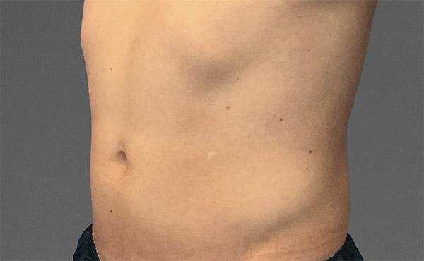 cooltone wellington male abdomen 1 before