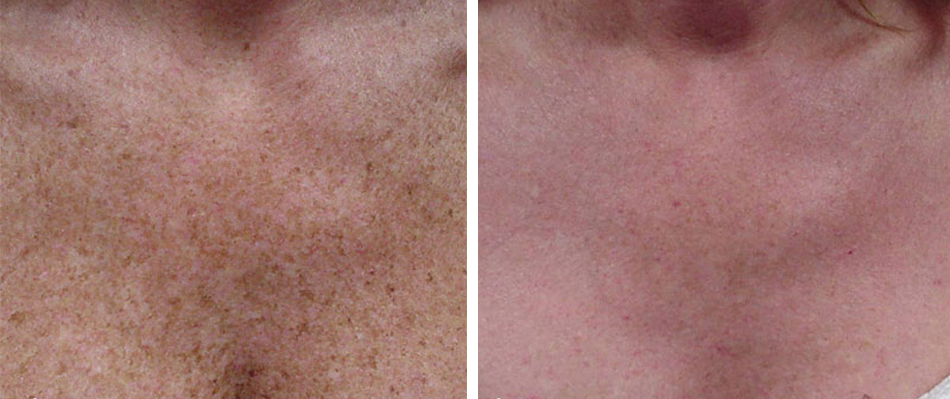 fractional co2 laser skin resurfacing before after chest 2