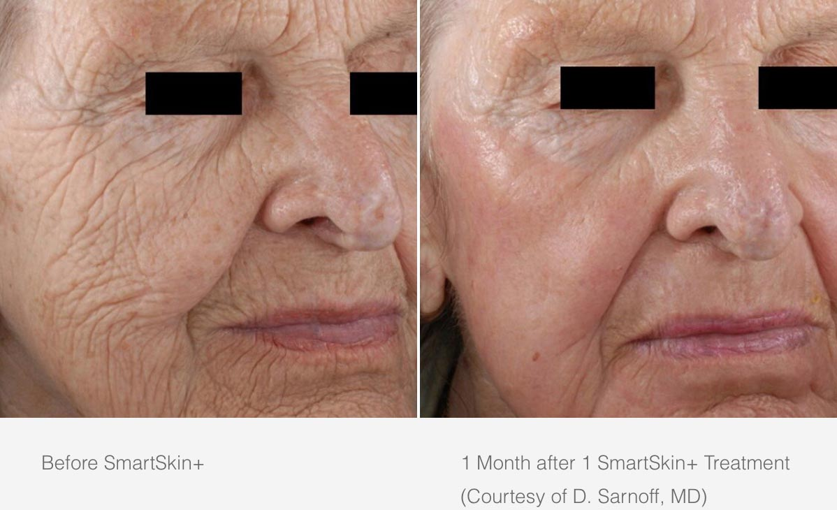 Cynosure Smartskin Before and After 3
